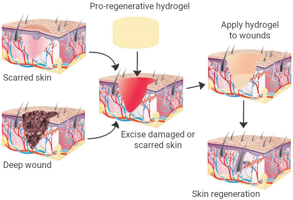 Scarred or damaged skin excised and Sunogel's pro-regenerative hydrogel applied to regenerate new skin.